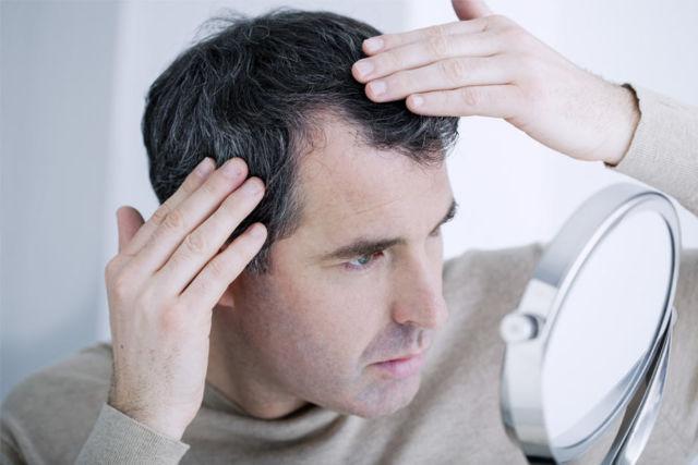 Quelques conseils pour éviter la perte de cheveux