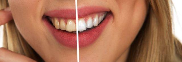 Quelles sont les solutions possibles pour en finir avec les dents jaunes ?