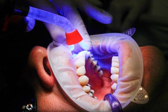 Se rendre chez le dentiste