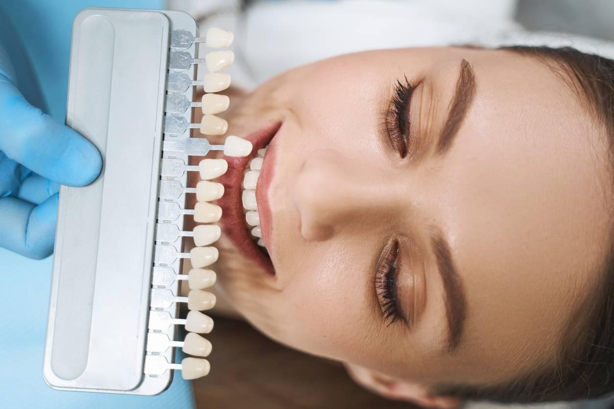 dents jaunes solutions facettes dentaires